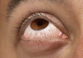 кровоизлияние в склеру глаза причины