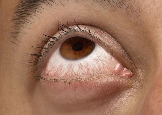 Кровоизлияние в глаз – как лечить в домашних условиях народными средствами