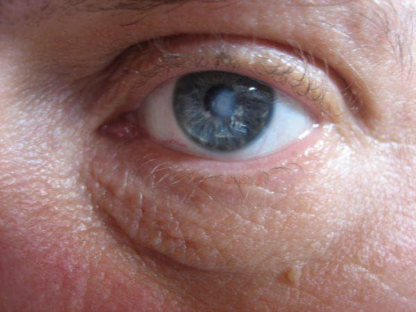 помутнение роговицы глаза