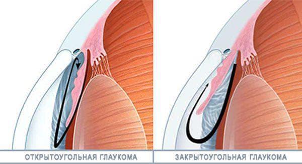 открытоугольная глаукома глаза