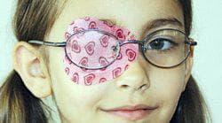 окклюзия глаза