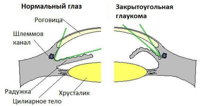 закрытоугольная глаукома глаза
