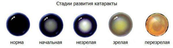 начальная катаракта глаза