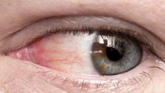 гифема глаза фото