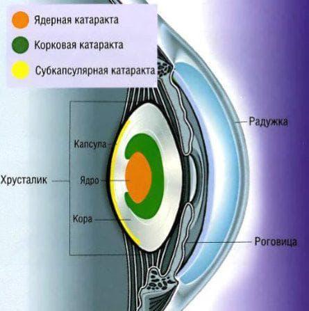 ядерная катаракта глаза