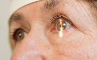 признаки начальной катаракты