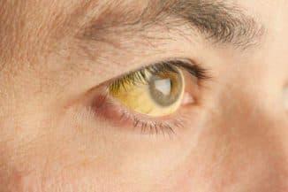 желтые пятна на белке глаза причина