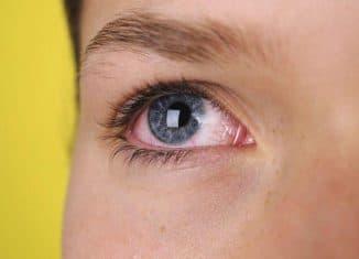 кровоизлияние в глаз у ребенка картинки