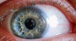 функциональная скотома глаза