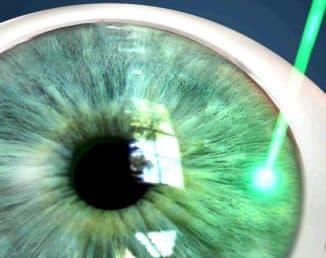 лечение глаукомы лазером отзывы стоимость