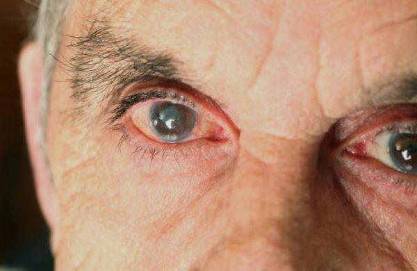 возрастная катаракта глаза