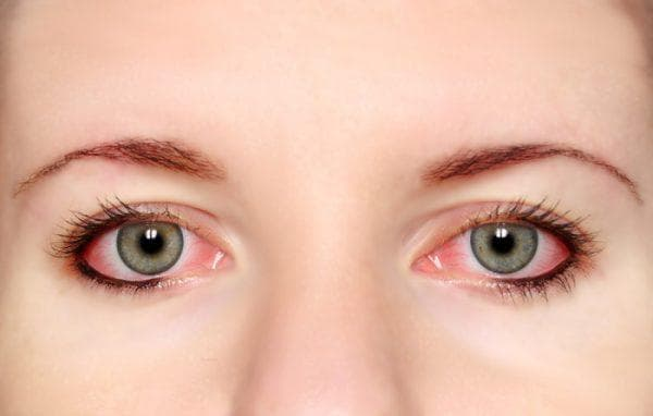 Лопаются сосуды в глазах - причины и лечение