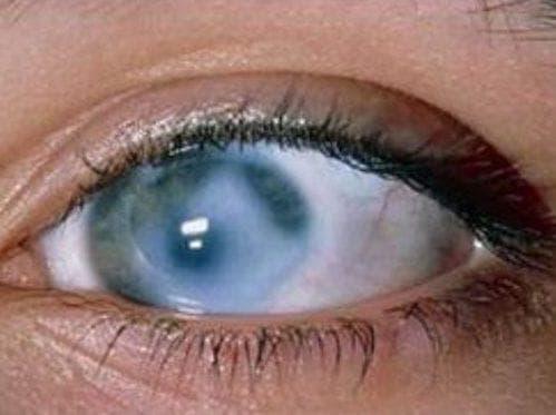 глаукома у взрослого