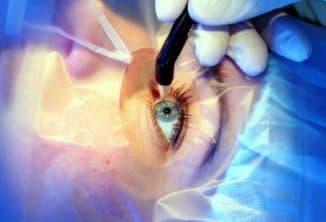 операция глаукомы последствия