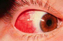 эписклерит