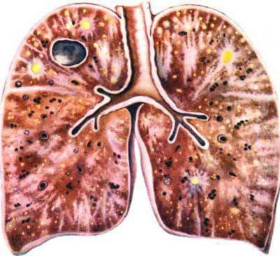 хроническое течение туберкулеза
