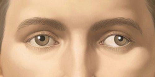 дисбинокулярный синдром «ленивого глаза»
