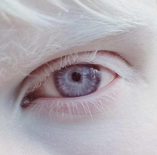 альбинизм глаз