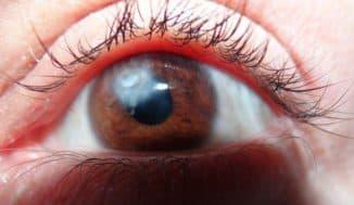 как убрать бельмо с глаза у человека