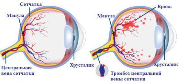 Симптомы нарушения кровоснабжения сетчатки