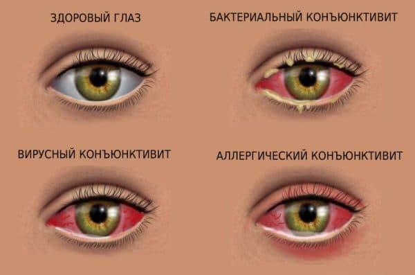 воспалённые глаза с гноем у ребёнка