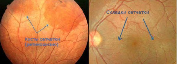 ретиношизис