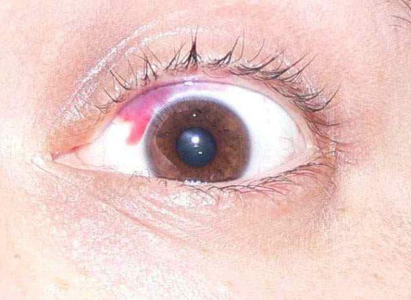 как снять боль в глазах после сварки