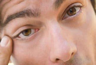глаз чешется во внутреннем уголке