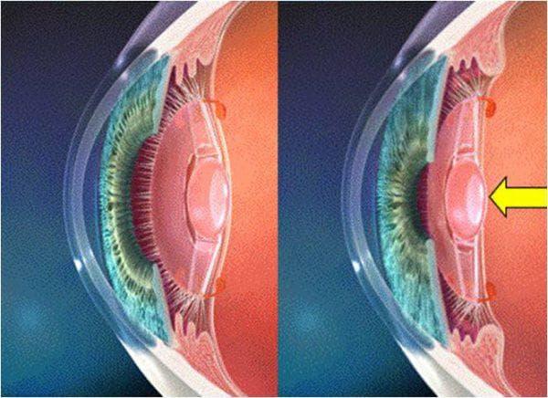 опорный искусственный хрусталик глаза