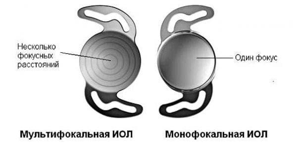 мультифокальный хрусталик