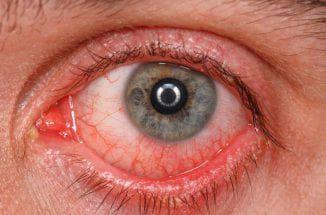 хронический конъюнктивит глаз