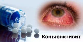 хронический конъюнктивит глаз лечение