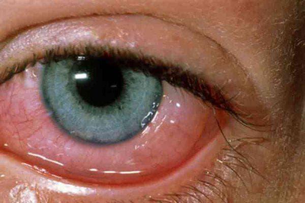 альбуцид глазные капли инструкция