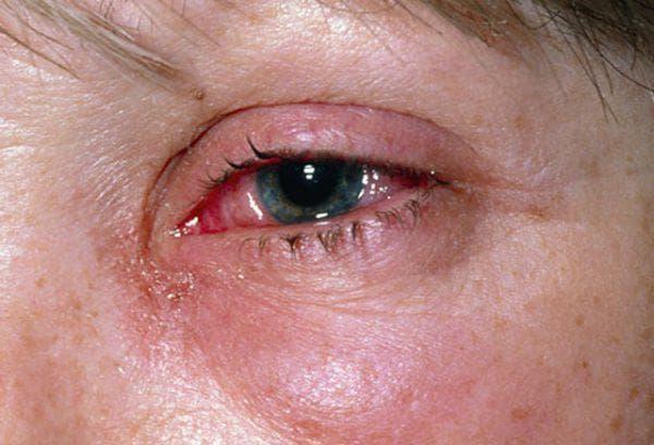 отек слизистой оболочки глаза