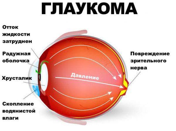 давление глаз