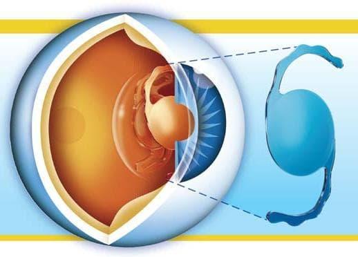 заднекамерная артифакия глаза
