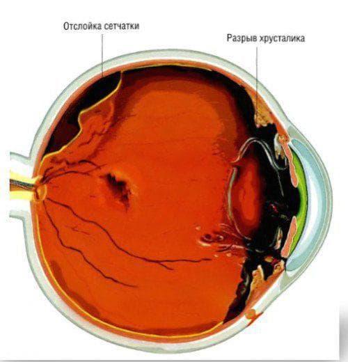 Травма переднего отдела глаза