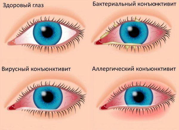 различное заболевание глаз