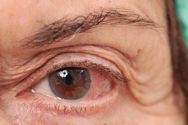 инфицирование глаз