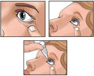 правило закапывания глаз
