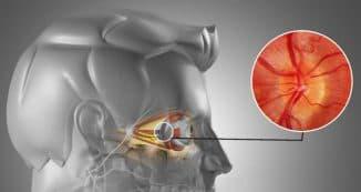 воспаление глазного нерва и плохое зрение