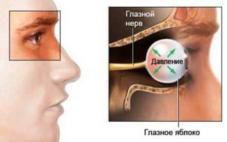воспаление глазного нерва и болят глаза