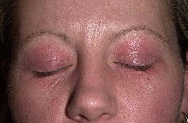 дерматит глаз