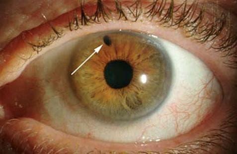 зернистые черные точки в глазах