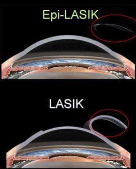 лазер Epi- LASIK