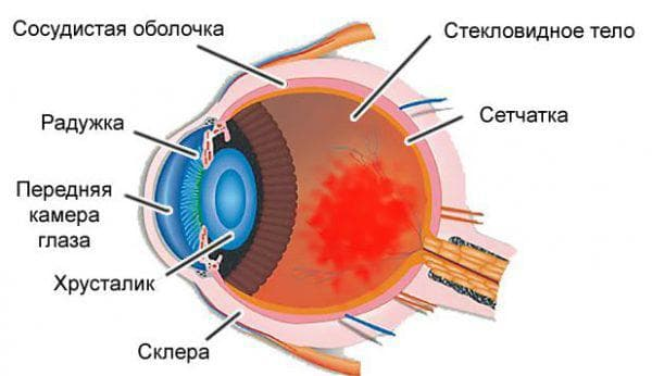 кровоизлияние в роговице глаза