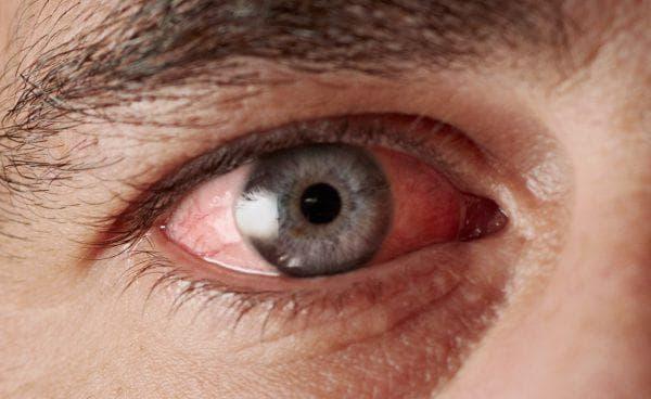 грибковое поражения глаза