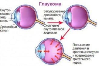 открытая глаукома