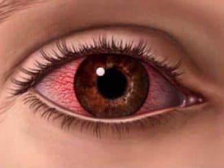 герпес на глазах