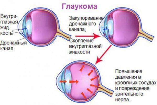 образование глаукомы